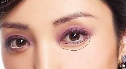 女生去眼袋手术过程恢复图片,去眼袋手术失败案例照片