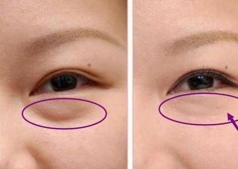去除眼袋美容手术失败案例,自然祛除眼袋的快速方法
