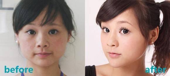 美容院祛斑方法秘方,美容院激光祛斑靠谱有效吗?